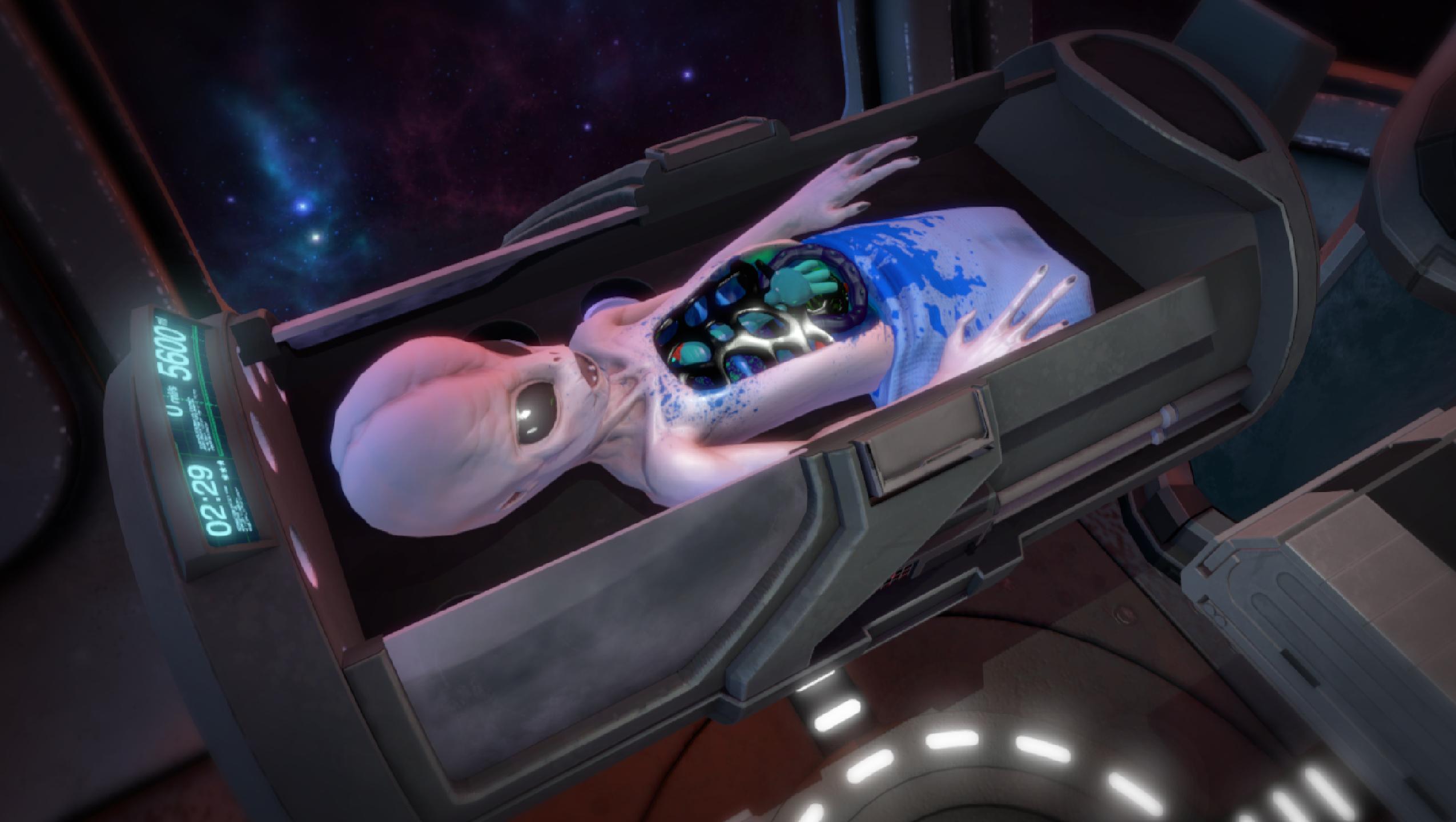 Operace mimozemšťana v novém Surgeon Simulatoru 114333
